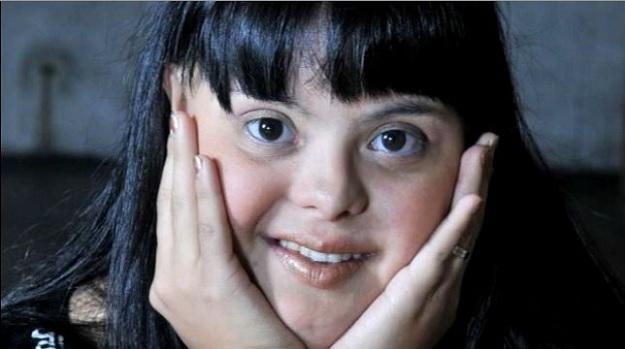 общественные стереотипы к людям с синдромом Дауна